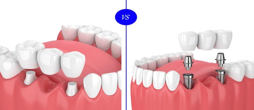 Dental Implants versus Crown and Bridge