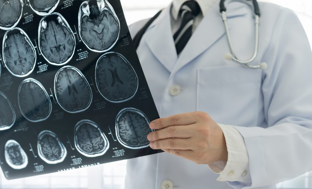 What is a Neurologist and What Do They Do?