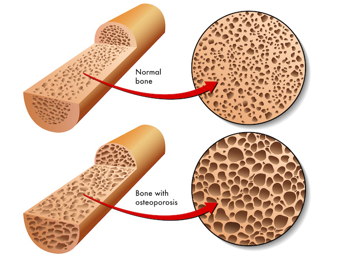Osteoporosis - An enlarged comparison of a normal bone verses a bone with osteoporosis.