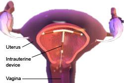 Intrauterine device (emergency contraception)