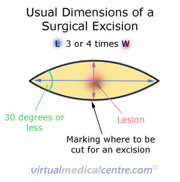 Dimensions of a surgical excission