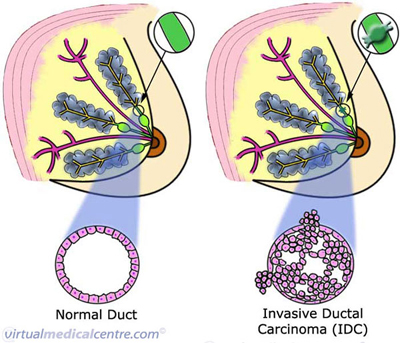 Ductal carcinoma of the breast (invasive)