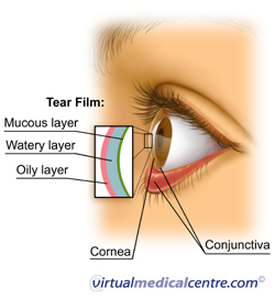 The tear film and the effects of Dry eye