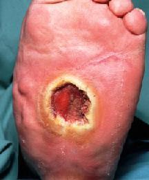 Peripheral arterial disease (Arteriosclerosis)