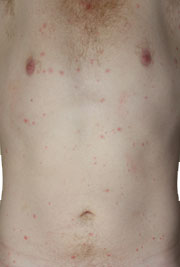 Shingles pictures