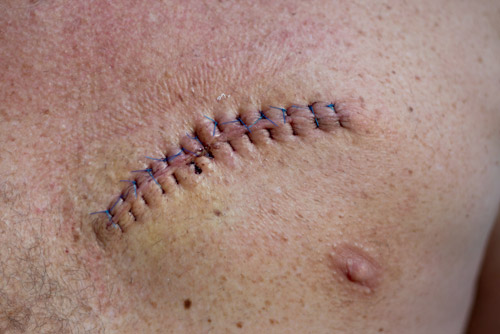 Surgical excision of a melanoma