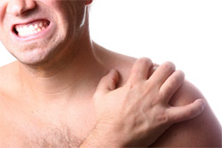 Shoulder dislocation and instability image