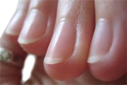 Anatomy of nails