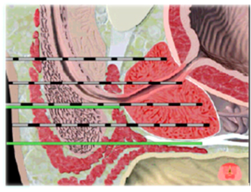 Figure 3: Lateral view of freezing needles and thermocouple (green) in prostate.