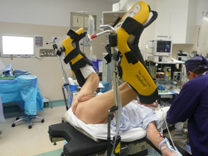 Radical perineal prostatectomy